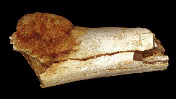 Ученые: Люди болели раком уже 1,7 млн  лет назад