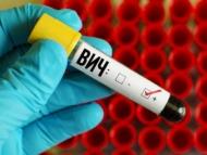 СПИД сильно распространяется в Баку