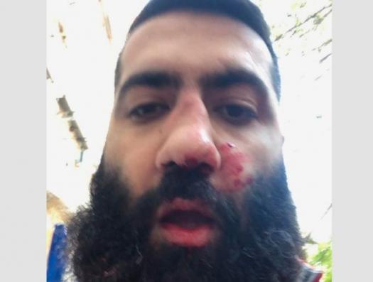 Вице-спикер парламента Армении ударил головой в нос журналисту