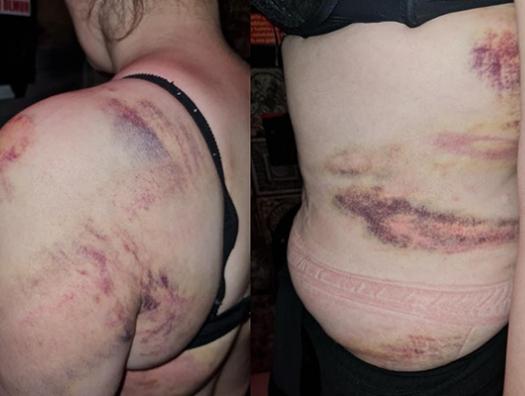 Зверски избитая Севиндж из-за детей вернулась к мужу, а он ее зарезал